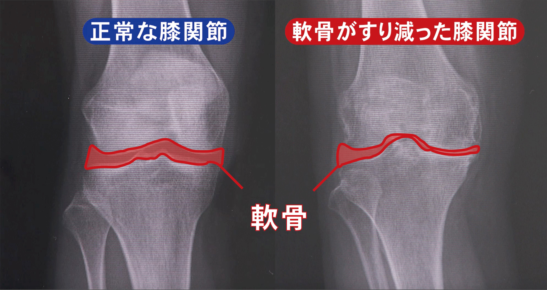 すり減る 膝 軟骨